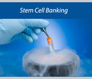 Are You Finding Stem Cell Therapy Mumbai for Baldness?