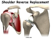 Reverse Shoulder Joint Replacement Surgery